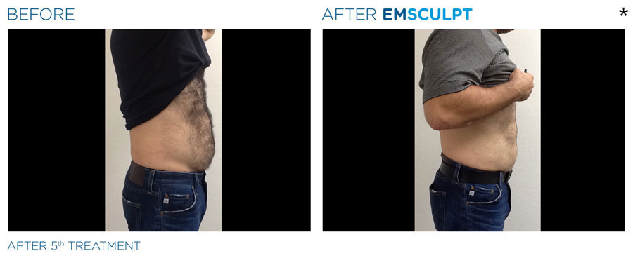 EMSculpt® Success Stories